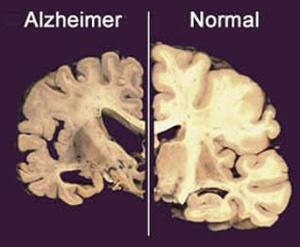 Alzheimer66