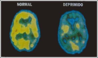 pet-cerebro-deprimido