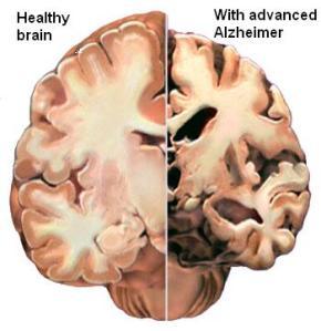 Alzheimer_8